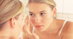Los jóvenes con acné se automedican