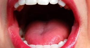 La halitosis, el trastorno del mal aliento