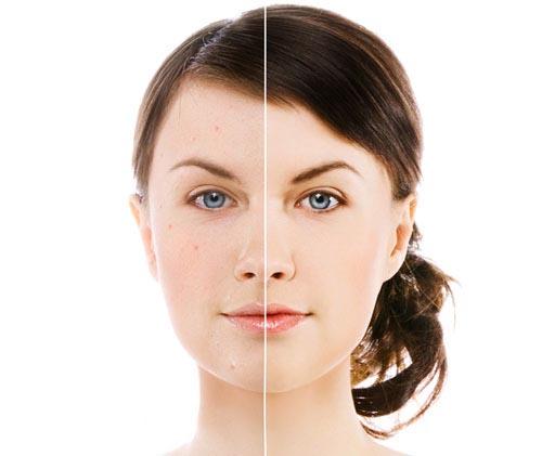 Los jovenes con acne se automedicanUnicas